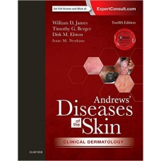 Andrews' Diseases of the Skin Clinical Dermatology