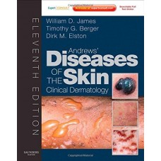 Andrews' Diseases of the Skin: Clinical Dermatology - Expert Consult - Online and Print