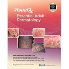 VisualDx: Essential Adult Dermatology