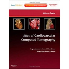 Atlas of Cardiovascular Computed Tomography: Imaging Companion