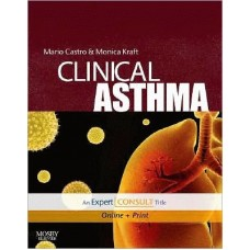 Clinical Asthma: Expert Consult